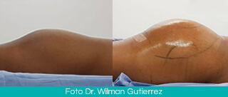 Gluteoplasty Colombia