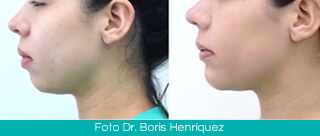 Mentoplasty Colombia