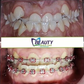 Orthodontics Colombia