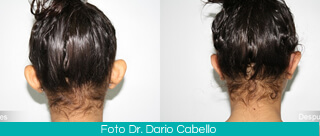 Otoplasty Colombia