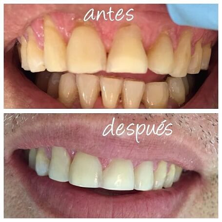 Carillas dentales y Blanqueamiento dental Colombia