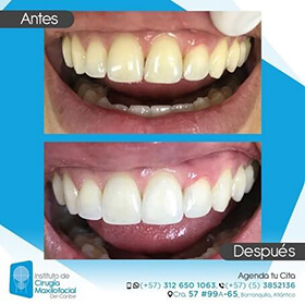 Teeth whitening Colombia