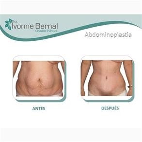 Abdominoplastia Colombia