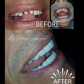 Smile makeover Colombia