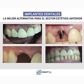 Implantes dentales Colombia