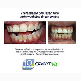 Blanqueamiento dental Colombia