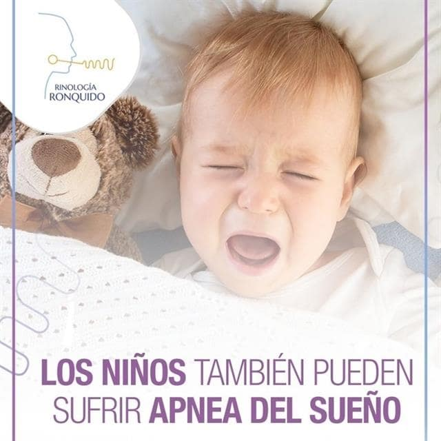 Snoring and apnea in children