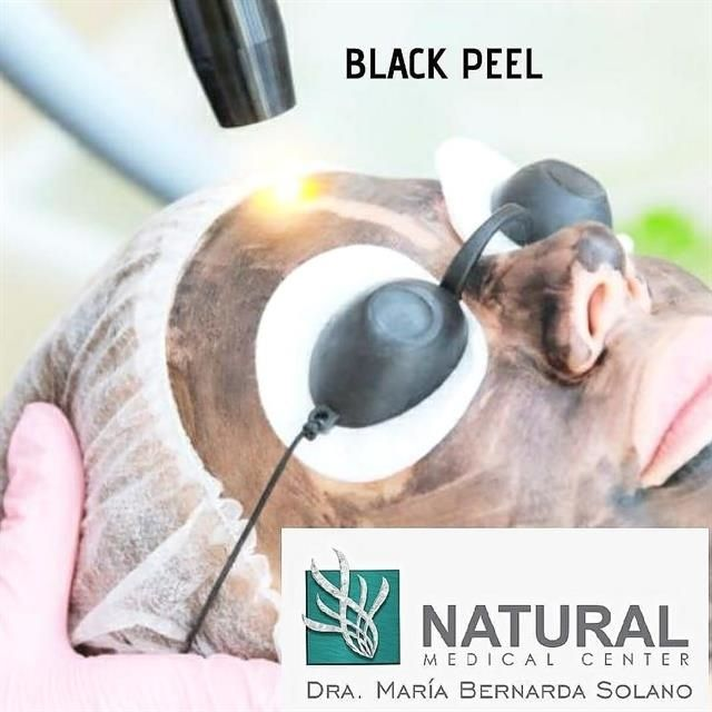 Black Peel in mothers month.