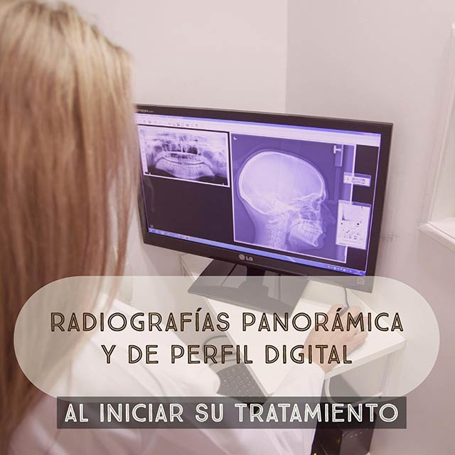 Panoramic radiography and digital profile