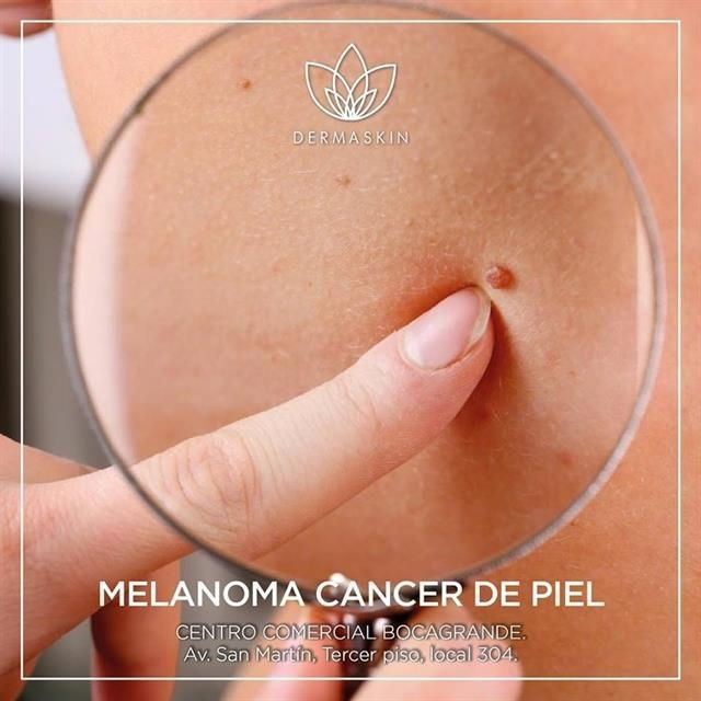 Melanoma-type cancer